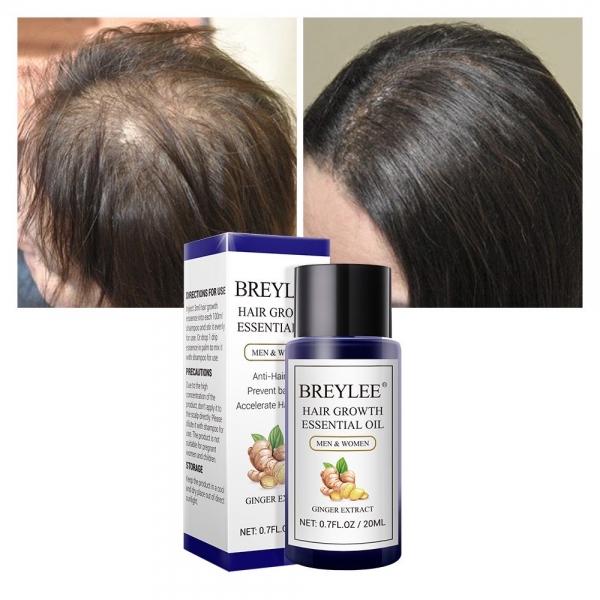 [BPOM] Hair Growth Essential Oil 20ml (Serum Penumbuh Rambut - Mencegah Kerontokan)